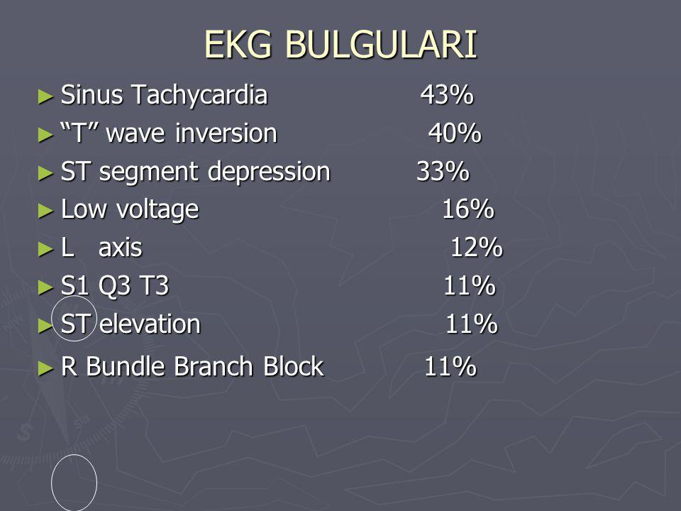 "EKG BULGULARI ► Sinus Tachycardia 43% ► ""T"" wave inversion 40% ► ST segment depression 33% ► Low voltage 16% ► L axis 12% ► S1 Q3 T3 11% ► ST elevatio"