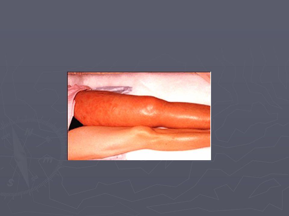 Hayatı tehdit eden: ► Akut Koroner Sendrom  Miyokard enfarktüsü ► ST yükseklilkli ► ST yükseklikli olmayan  Kararsız anjina pektoris ► Pulmoner emboli ► Aort diseksiyonu ► Tansiyon pnömotoraks ► Özefagus rüptürü ► Kardiyak tamponad ► Pnömoni Diğer: ► Kardiyak ► Pulmoner  Plörezi  Trakeobronşit ► Gastrointestinal ► Muskuloskeletal  Kostokondrit  Servikal-torakal omurilik problemleri ► Psikojenik Göğüs Ağrısı Nedenleri :