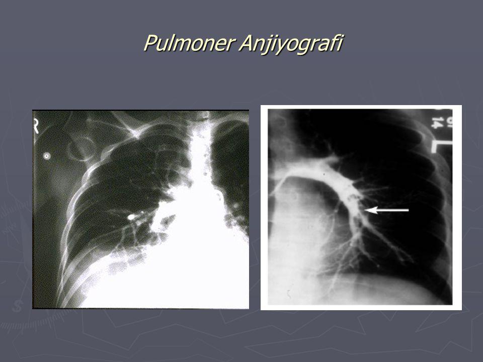 Pulmonary Arteriogram J.Galvin, M.D. J.Choi, B.S.