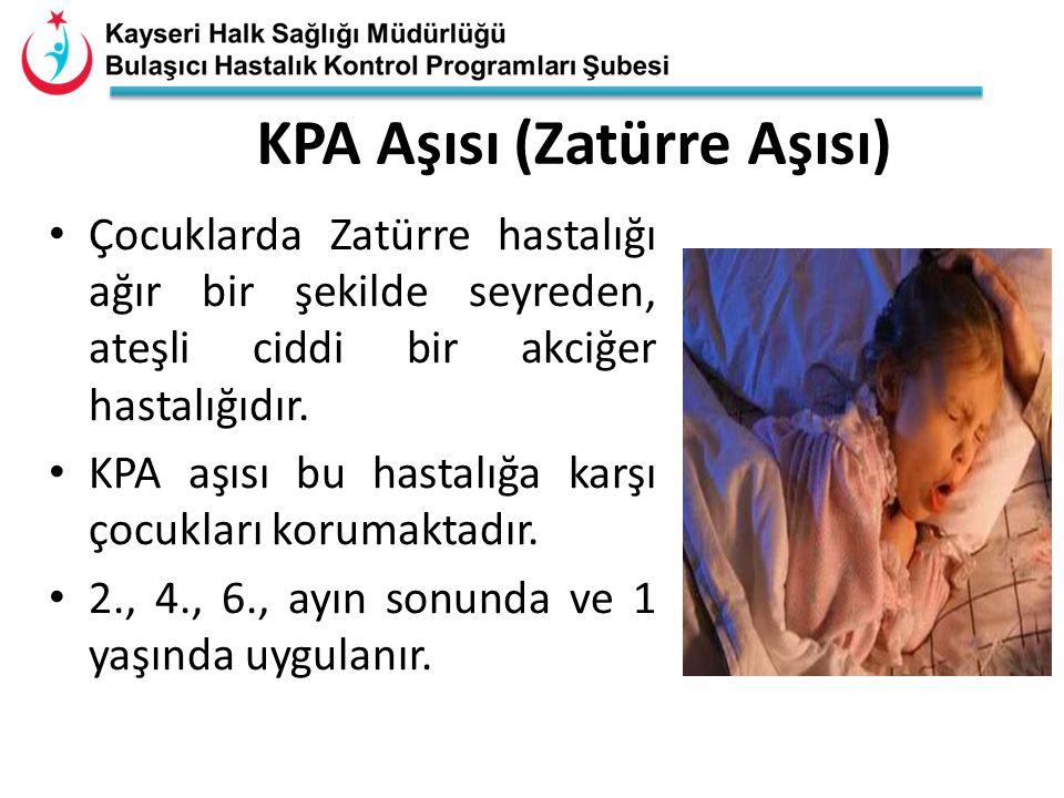 KPA Aşısı (Zatürre Aşısı) Çocuklarda Zatürre hastalığı ağır bir şekilde seyreden, ateşli ciddi bir akciğer hastalığıdır. KPA aşısı bu hastalığa karşı