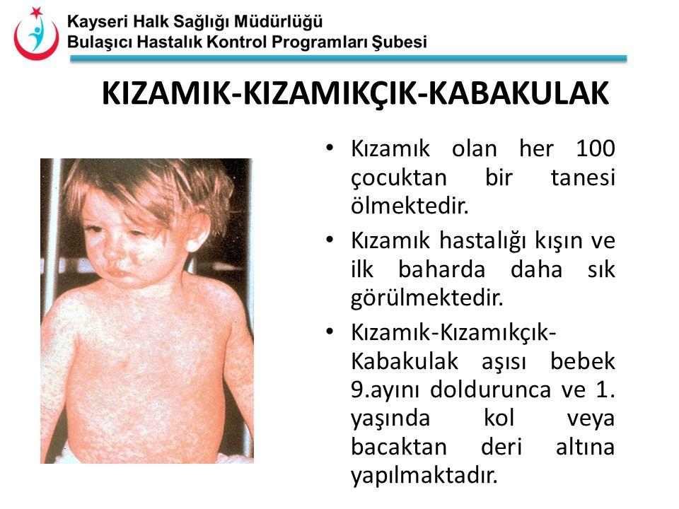 KIZAMIK-KIZAMIKÇIK-KABAKULAK Kızamık olan her 100 çocuktan bir tanesi ölmektedir. Kızamık hastalığı kışın ve ilk baharda daha sık görülmektedir. Kızam