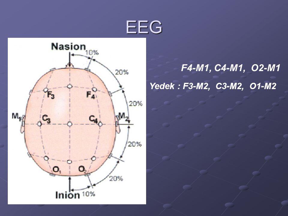 EEG F4-M1, C4-M1, O2-M1 Yedek : F3-M2, C3-M2, O1-M2