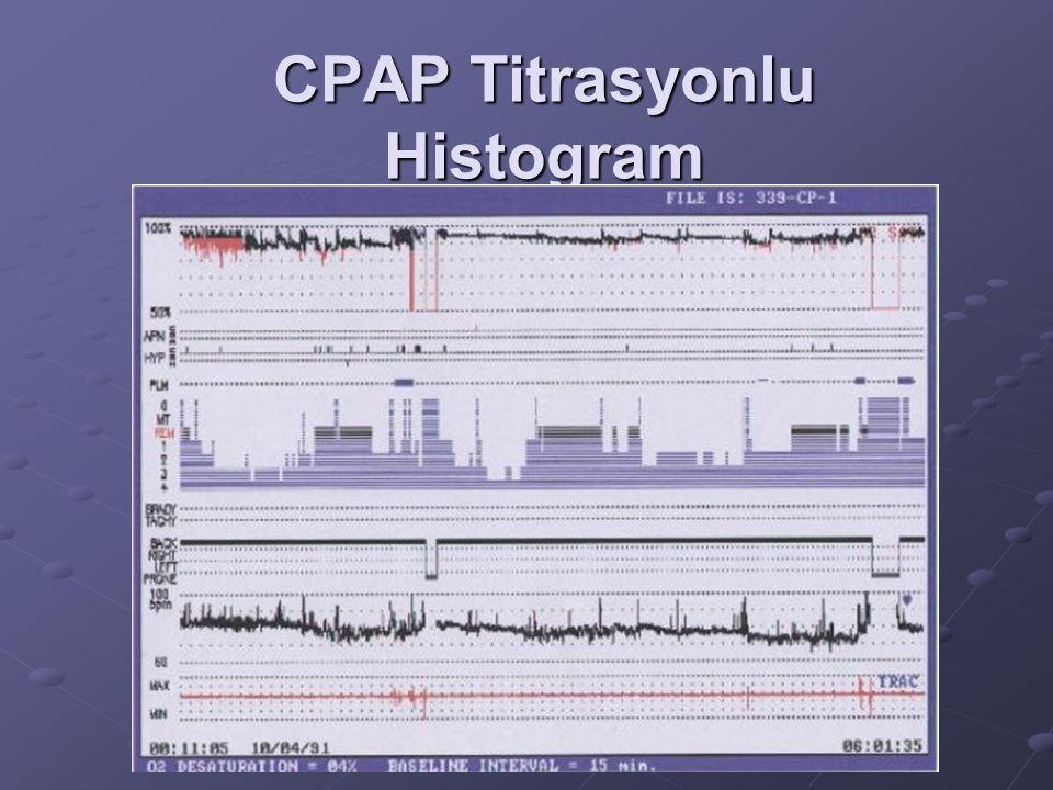 CPAP Titrasyonlu Histogram