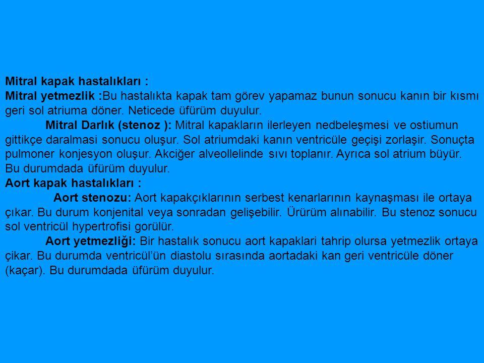 Ventricüler septal defekt: Septum interventriculare de defektlerin (açıklıkdelik) bulunmasi sonucudur.