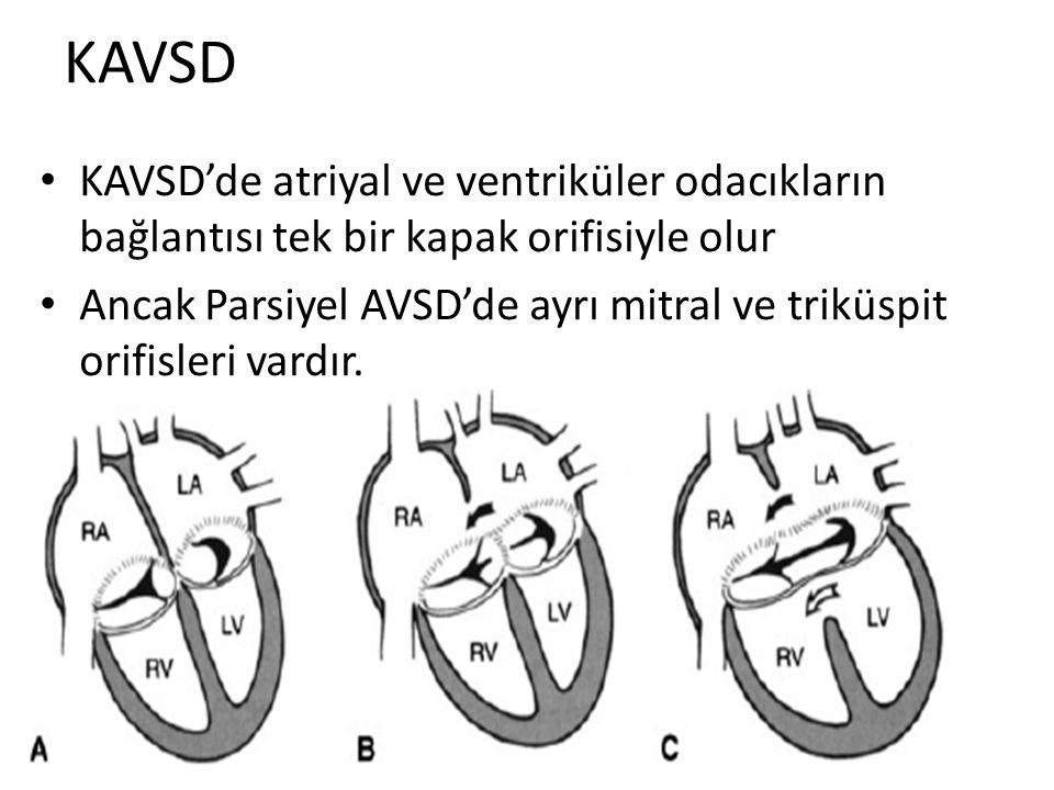 KAVSD KAVSD'de atriyal ve ventriküler odacıkların bağlantısı tek bir kapak orifisiyle olur Ancak Parsiyel AVSD'de ayrı mitral ve triküspit orifisleri