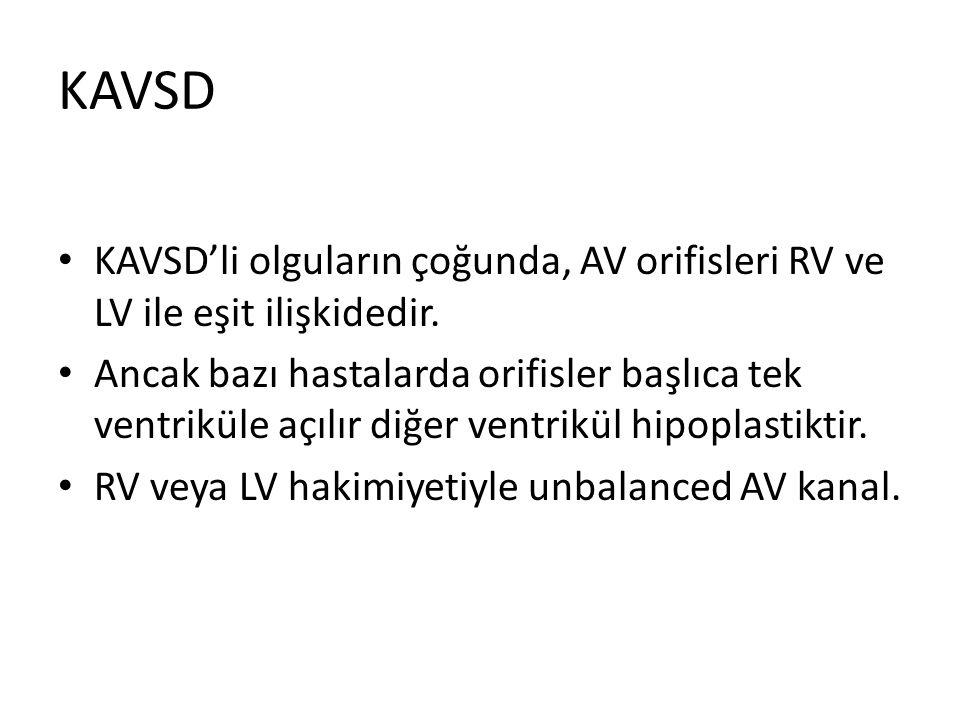 KAVSD KAVSD'li olguların çoğunda, AV orifisleri RV ve LV ile eşit ilişkidedir. Ancak bazı hastalarda orifisler başlıca tek ventriküle açılır diğer ven