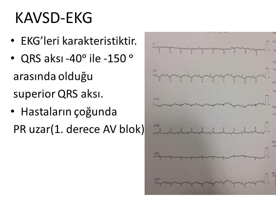 KAVSD-EKG EKG'leri karakteristiktir. QRS aksı -40ᵒ ile -150 ᵒ arasında olduğu superior QRS aksı. Hastaların çoğunda PR uzar(1. derece AV blok).