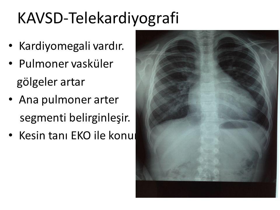 KAVSD-Telekardiyografi Kardiyomegali vardır. Pulmoner vasküler gölgeler artar Ana pulmoner arter segmenti belirginleşir. Kesin tanı EKO ile konur