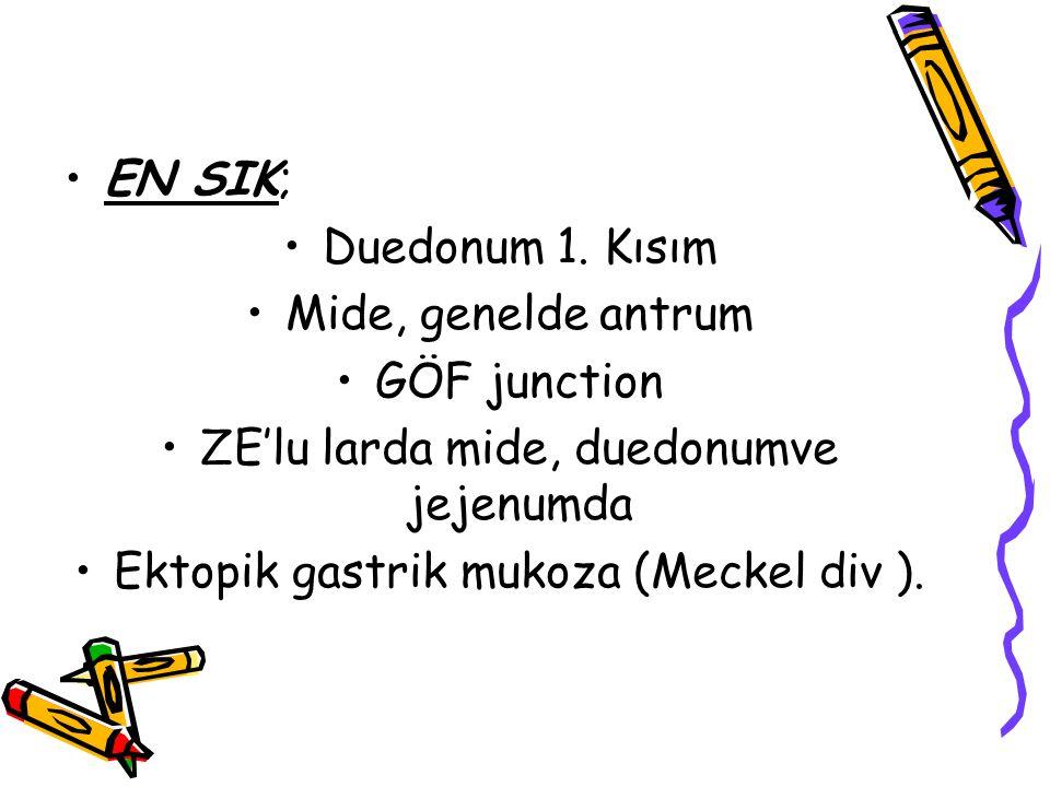 EN SIK; Duedonum 1. Kısım Mide, genelde antrum GÖF junction ZE'lu larda mide, duedonumve jejenumda Ektopik gastrik mukoza (Meckel div ).
