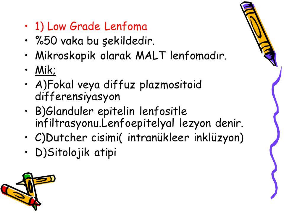 1) Low Grade Lenfoma %50 vaka bu şekildedir. Mikroskopik olarak MALT lenfomadır. Mik; A)Fokal veya diffuz plazmositoid differensiyasyon B)Glanduler ep