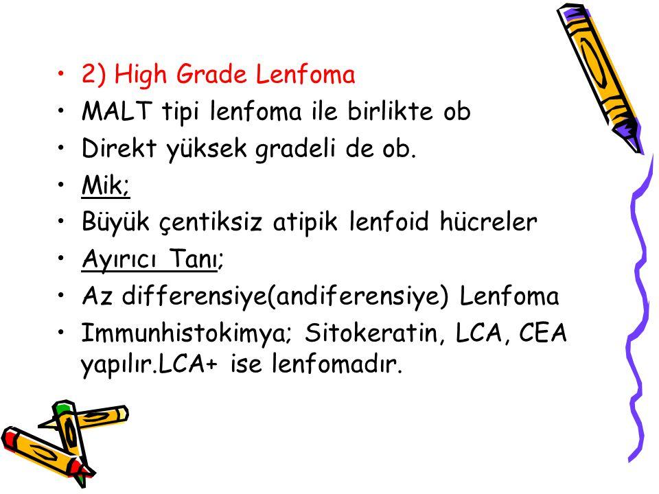 2) High Grade Lenfoma MALT tipi lenfoma ile birlikte ob Direkt yüksek gradeli de ob. Mik; Büyük çentiksiz atipik lenfoid hücreler Ayırıcı Tanı; Az dif