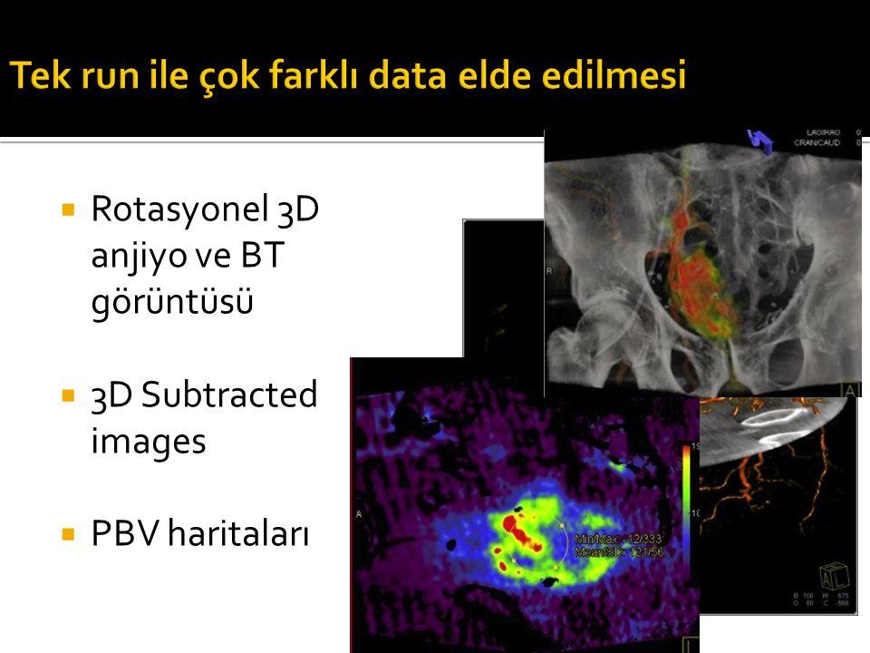  Rotasyonel 3D anjiyo ve BT görüntüsü  3D Subtracted images  PBV haritaları