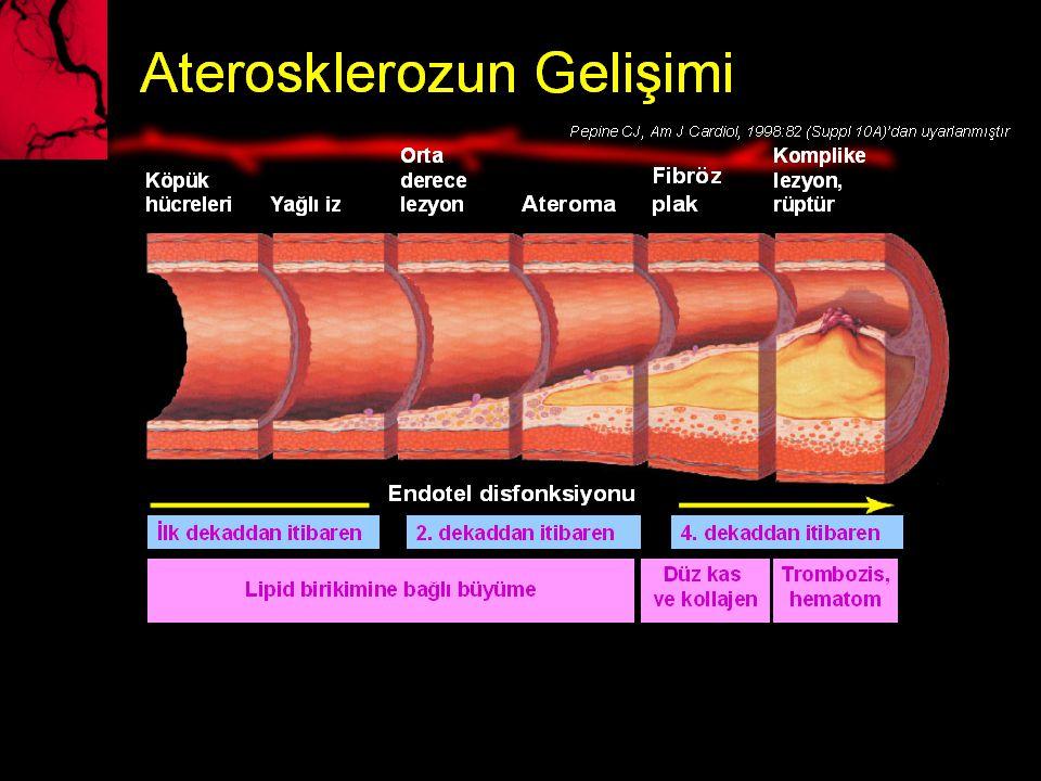 Plak platelet agregasyonu trombüs formasyonu Vazospasm plak rüptürü (55-80%) AKS Patogenezi STEMI tam oklüzyon UAP NSTE MI İnkomplet oklüzyon Distal embolizasyon