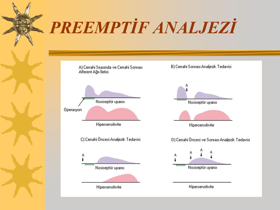 PREEMPTİF ANALJEZİ