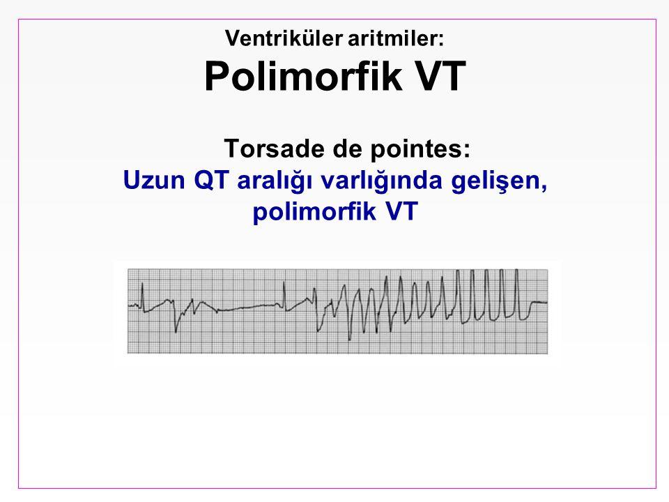 Ventriküler aritmiler: Polimorfik VT Torsade de pointes: Uzun QT aralığı varlığında gelişen, polimorfik VT