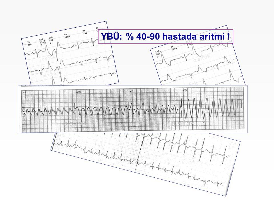 YBÜ: % 40-90 hastada aritmi !