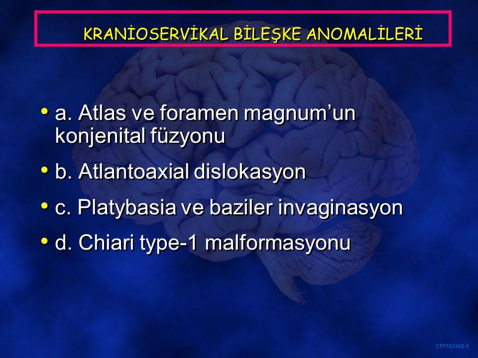 CP1123442-1 KRANİOSERVİKAL BİLEŞKE ANOMALİLERİ a. Atlas ve foramen magnum'un konjenital füzyonu b. Atlantoaxial dislokasyon c. Platybasia ve baziler i
