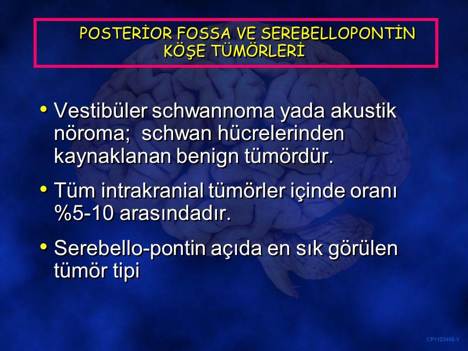 CP1123442-1 POSTERİOR FOSSA VE SEREBELLOPONTİN KÖŞE TÜMÖRLERİ Vestibüler schwannoma yada akustik nöroma; schwan hücrelerinden kaynaklanan benign tümör