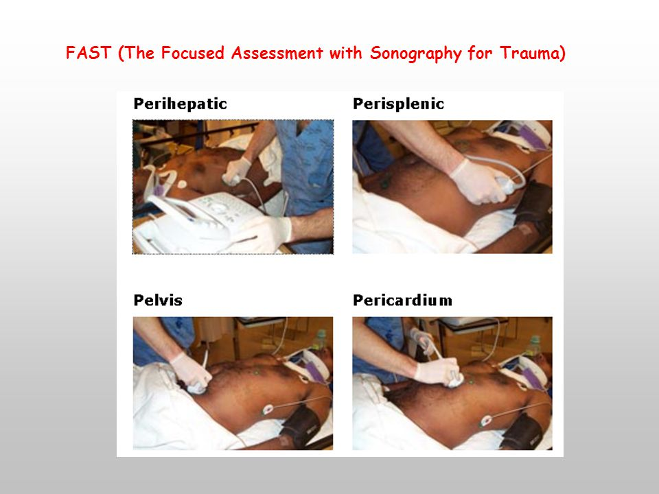 FAST (The Focused Assessment with Sonography for Trauma)