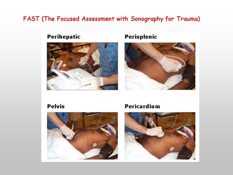 Bilgisayarlı Tomografi (BT) » Hastanın genel durumu stabil olmalı » Spiral BT (Konvansiyonel BT azaldı) » İçi boş organ yaralanmaları için yeterli bilgi vermez.