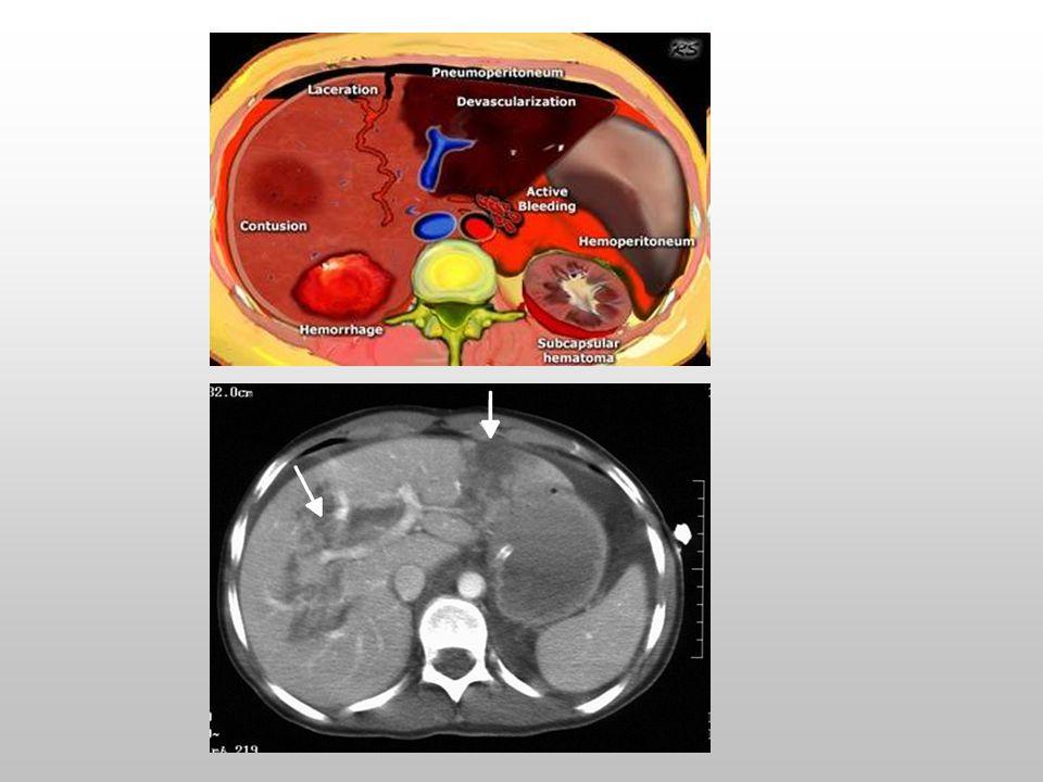 » Diagnostik peritoneal lavaj