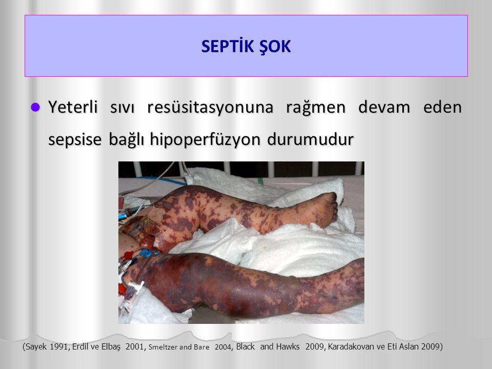 SEPTİK ŞOK Yeterli sıvı resüsitasyonuna rağmen devam eden sepsise bağlı hipoperfüzyon durumudur Yeterli sıvı resüsitasyonuna rağmen devam eden sepsise
