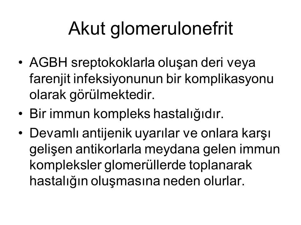 Akut glomerulonefrit AGBH sreptokoklarla oluşan deri veya farenjit infeksiyonunun bir komplikasyonu olarak görülmektedir. Bir immun kompleks hastalığı