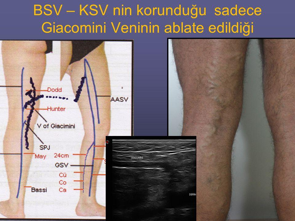 BSV – KSV nin korunduğu sadece Giacomini Veninin ablate edildiği