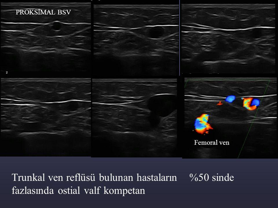 Femoral ven PROKSİMAL BSV Trunkal ven reflüsü bulunan hastaların %50 sinde fazlasında ostial valf kompetan