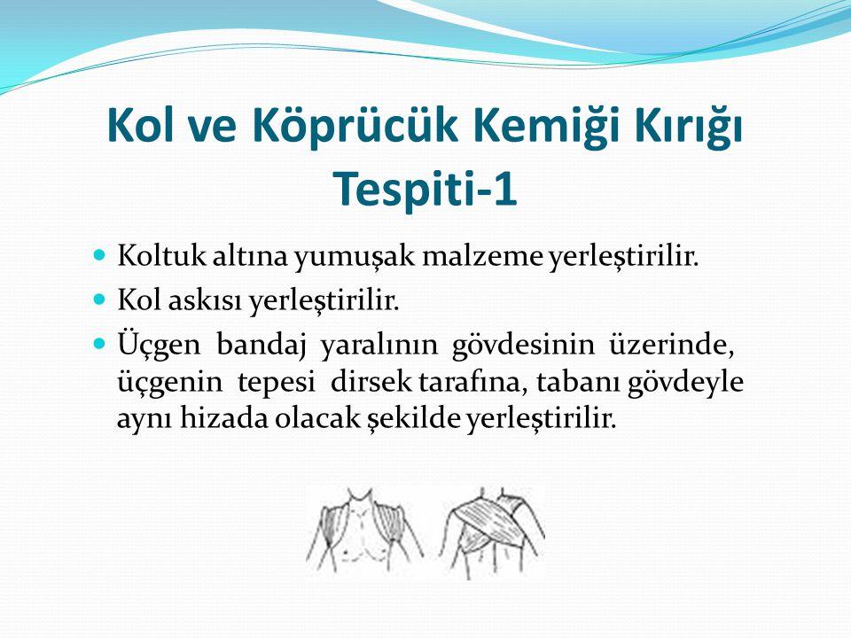 Kol ve Köprücük Kemiği Kırığı Tespiti-1 Koltuk altına yumuşak malzeme yerleştirilir.