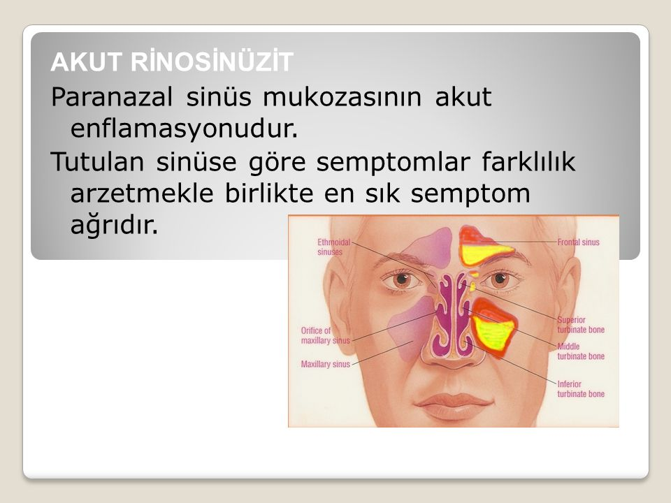 AKUT RİNOSİNÜZİT Paranazal sinüs mukozasının akut enflamasyonudur. Tutulan sinüse göre semptomlar farklılık arzetmekle birlikte en sık semptom ağrıdır