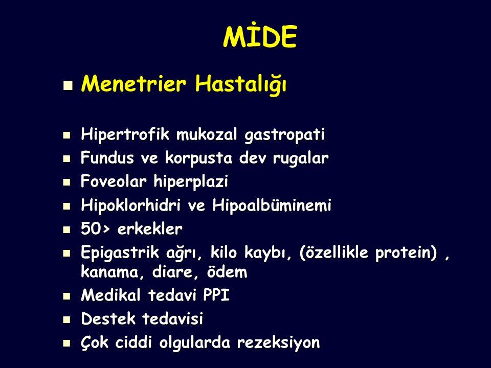 MİDE Menetrier Hastalığı Menetrier Hastalığı Hipertrofik mukozal gastropati Hipertrofik mukozal gastropati Fundus ve korpusta dev rugalar Fundus ve korpusta dev rugalar Foveolar hiperplazi Foveolar hiperplazi Hipoklorhidri ve Hipoalbüminemi Hipoklorhidri ve Hipoalbüminemi 50> erkekler 50> erkekler Epigastrik ağrı, kilo kaybı, (özellikle protein), kanama, diare, ödem Epigastrik ağrı, kilo kaybı, (özellikle protein), kanama, diare, ödem Medikal tedavi PPI Medikal tedavi PPI Destek tedavisi Destek tedavisi Çok ciddi olgularda rezeksiyon Çok ciddi olgularda rezeksiyon