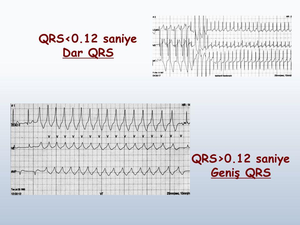 QRS<0.12 saniye Dar QRS QRS>0.12 saniye Geniş QRS