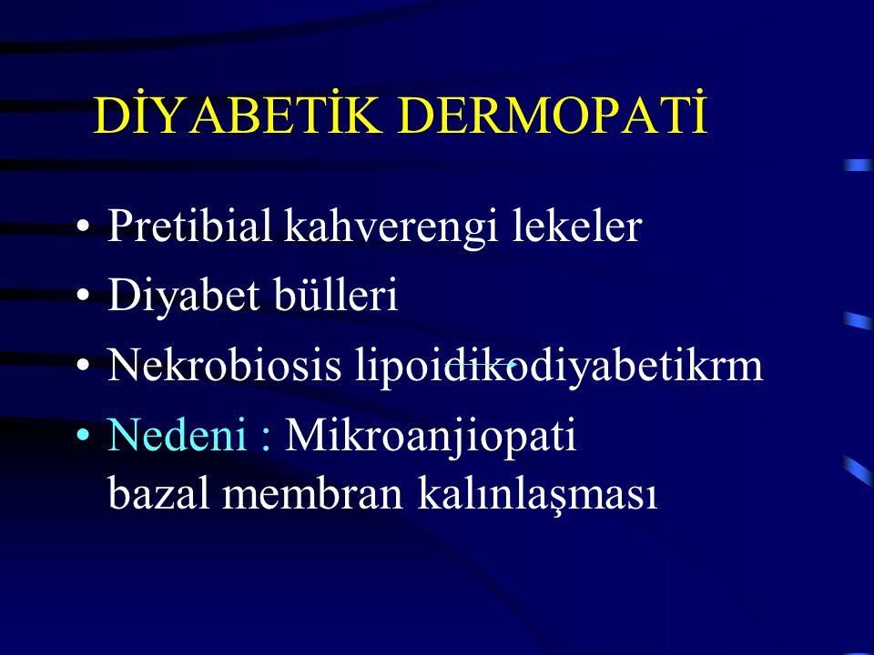 DİYABETİK DERMOPATİ Pretibial kahverengi lekeler Diyabet bülleri Nekrobiosis lipoidikodiyabetikrm Nedeni : Mikroanjiopati bazal membran kalınlaşması
