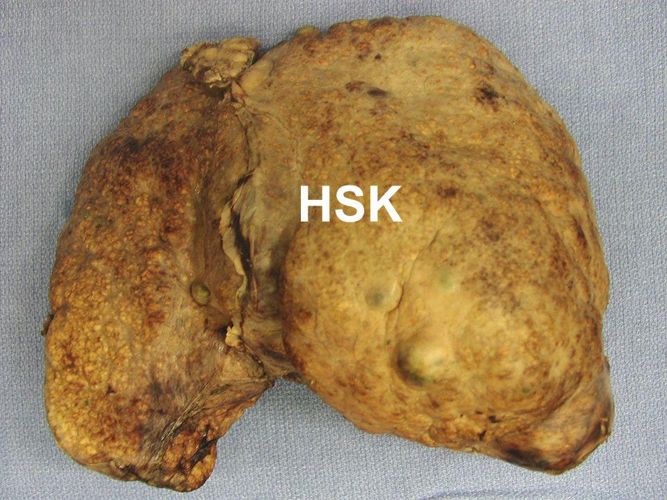 Radyoembolizasyon Hepatik arter dalından mikroküre enjeksiyonu Tümör içinde prekapiller alveoler yatakta takılacak boyutta..