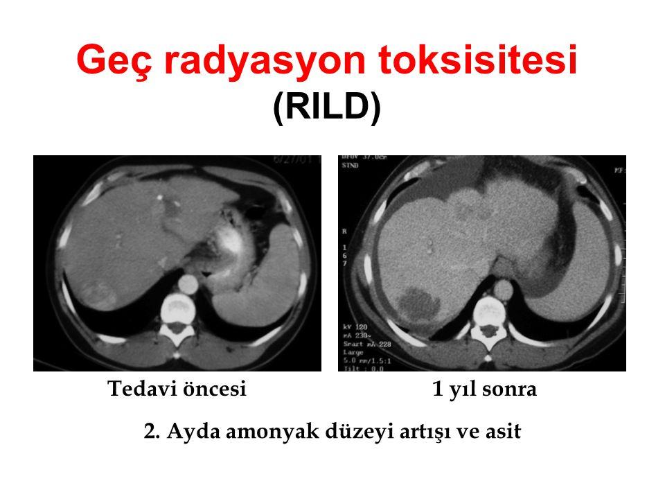Geç radyasyon toksisitesi (RILD) Tedavi öncesi1 yıl sonra 2. Ayda amonyak düzeyi artışı ve asit
