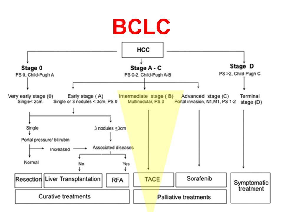 Portal Ven Trombozu HSK'da RE için en sık endikasyon Kulik ve ark (2008) –phase 2 study, 108 HCC patients –With (34%) & without (66%)PVT.