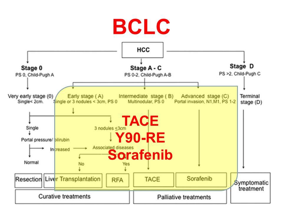 RADYOEMBOLİZASYON TEDAVİ AŞAMALARI Tedavi öncesi tedaviye uygunluğu değerlendiren çalışmalar Tedavi dozu hesaplama çalışmaları Y-90 mikroküre uygulama
