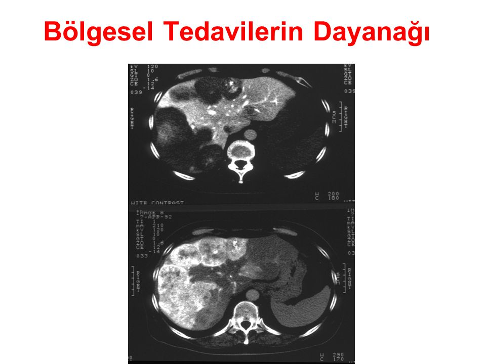 Tedavi öncesi Tc-99m-MAA Sintigrafisi (macro-aggregated albumin) ŞANT %46 ŞANT %6