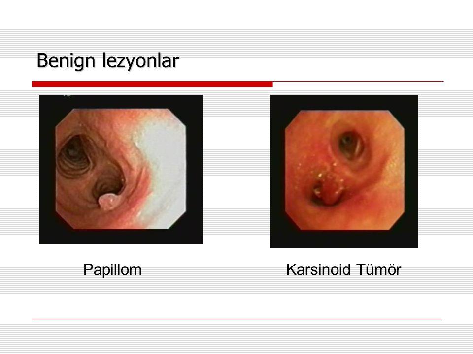 Benign lezyonlar Papillom Karsinoid Tümör