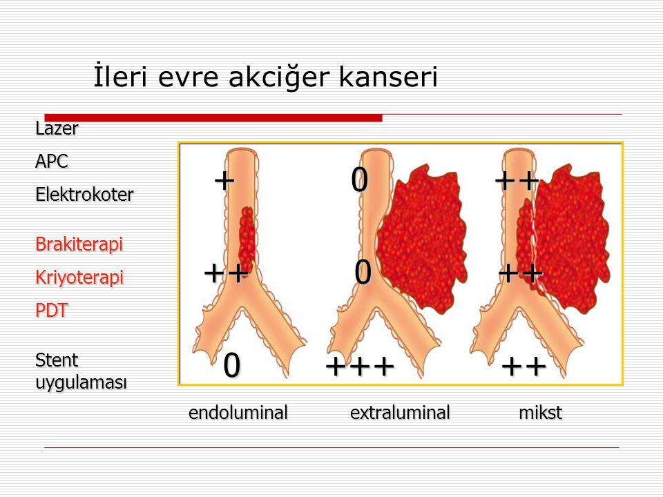 . Lazer APCElektrokoter Brakiterapi Kriyoterapi PDT Stent uygulaması + 0 ++ + 0 ++ ++ 0 ++ ++ 0 ++ 0 +++ ++ 0 +++ ++ endoluminal extraluminal mikst en