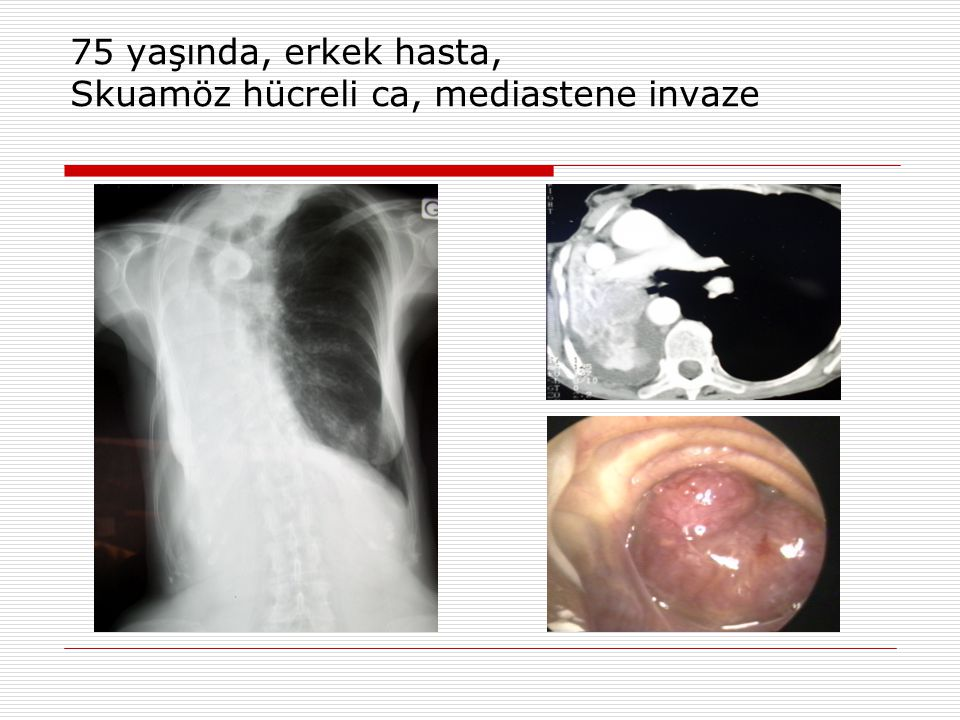 Benign hastalıklar  Striktürler: Yatrojenik, postintubasyon, posttrakeostomi - Stent 3 ay sonra çıkarılmalı  Mukozal Web ve yapışıklıklar – Elektrokoter  Amiloid – Stent uygulanmalı  Trakeomalazi  Tekrarlayıcı Polikondirit  Benign tümörler  Difüz havayolu yanıkları