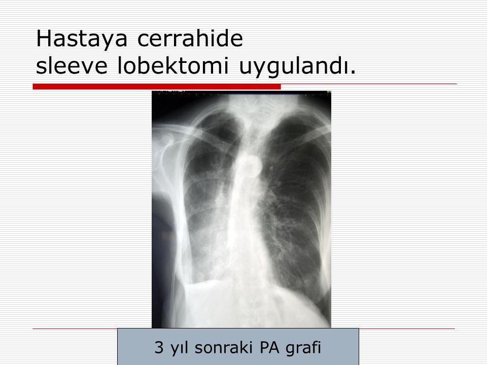 Hastaya cerrahide sleeve lobektomi uygulandı. 3 yıl sonraki PA grafi