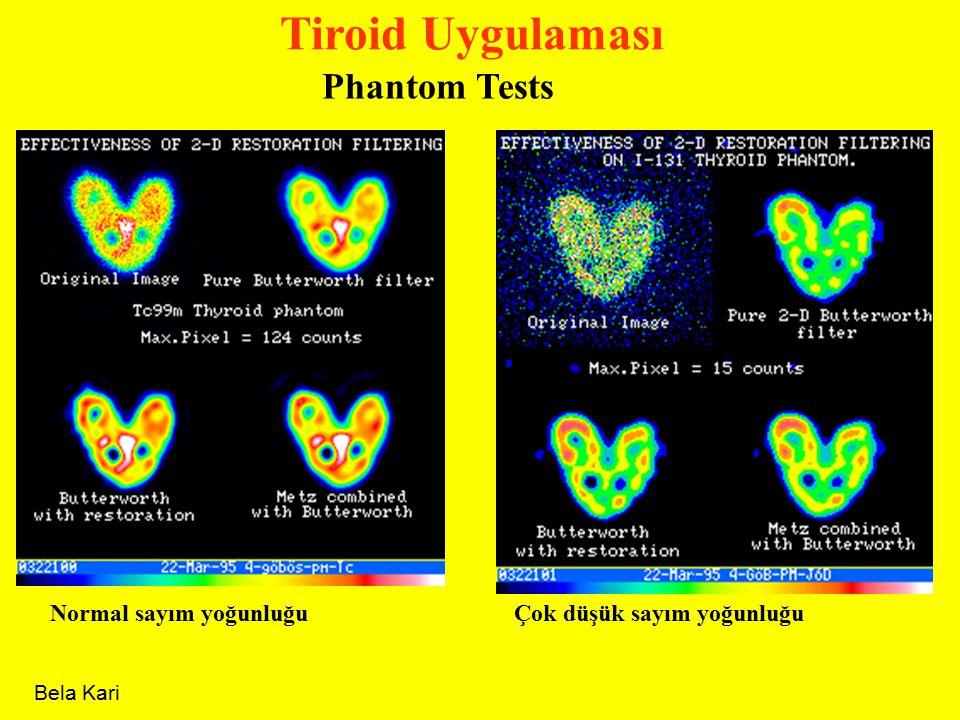 Tiroid Uygulaması Phantom Tests Normal sayım yoğunluğuÇok düşük sayım yoğunluğu Bela Kari