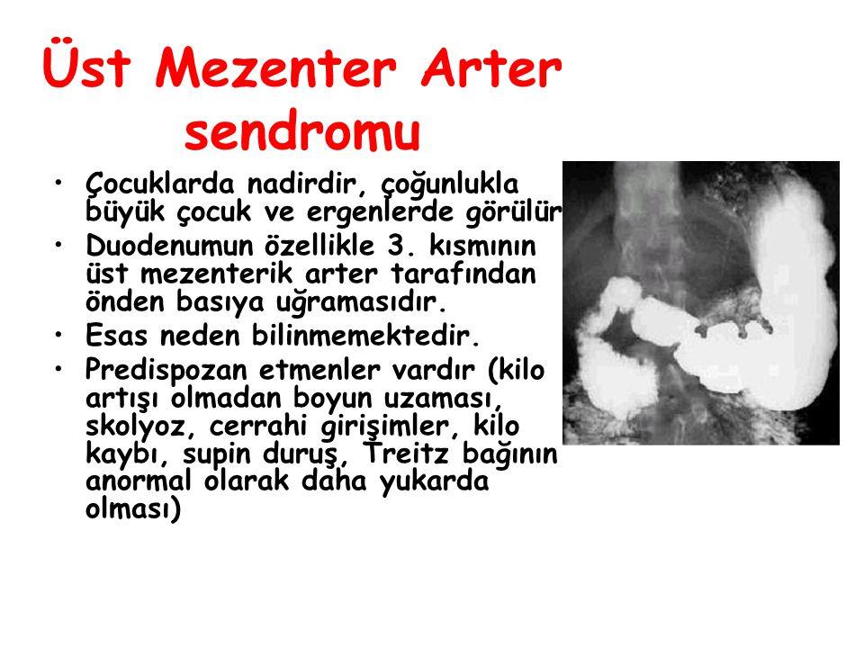 Üst Mezenter Arter sendromu Çocuklarda nadirdir, çoğunlukla büyük çocuk ve ergenlerde görülür. Duodenumun özellikle 3. kısmının üst mezenterik arter t