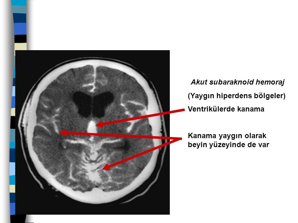 Akut subaraknoid hemoraj (Yaygın hiperdens bölgeler) Ventrikülerde kanama Kanama yaygın olarak beyin yüzeyinde de var