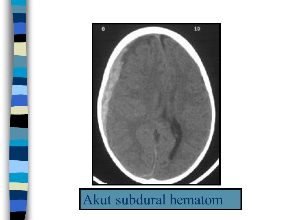 Akut subdural hematom