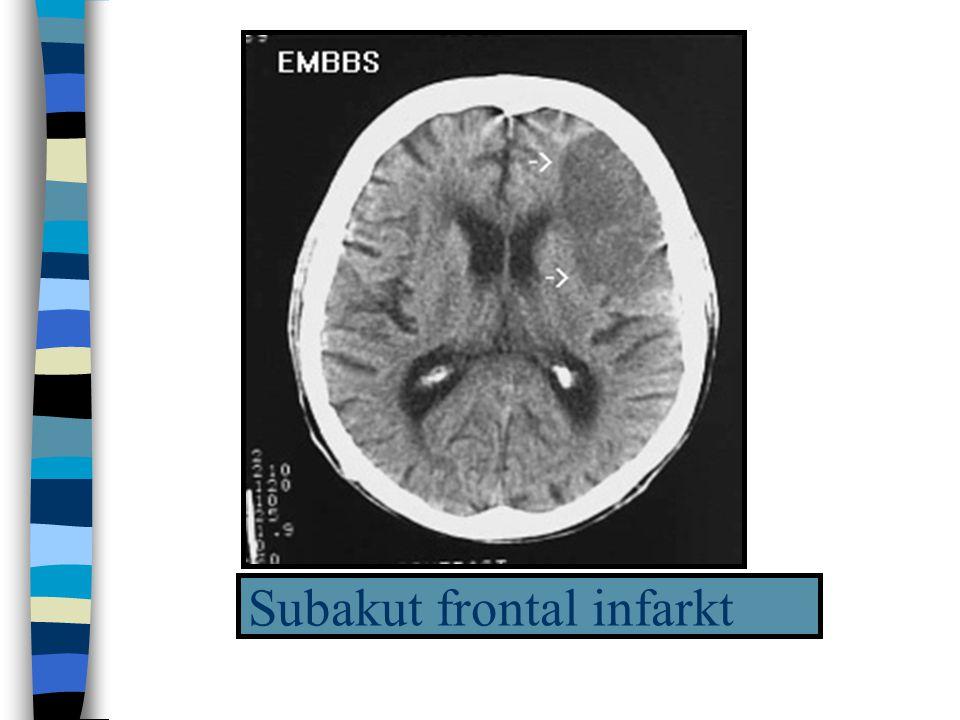 Subakut frontal infarkt