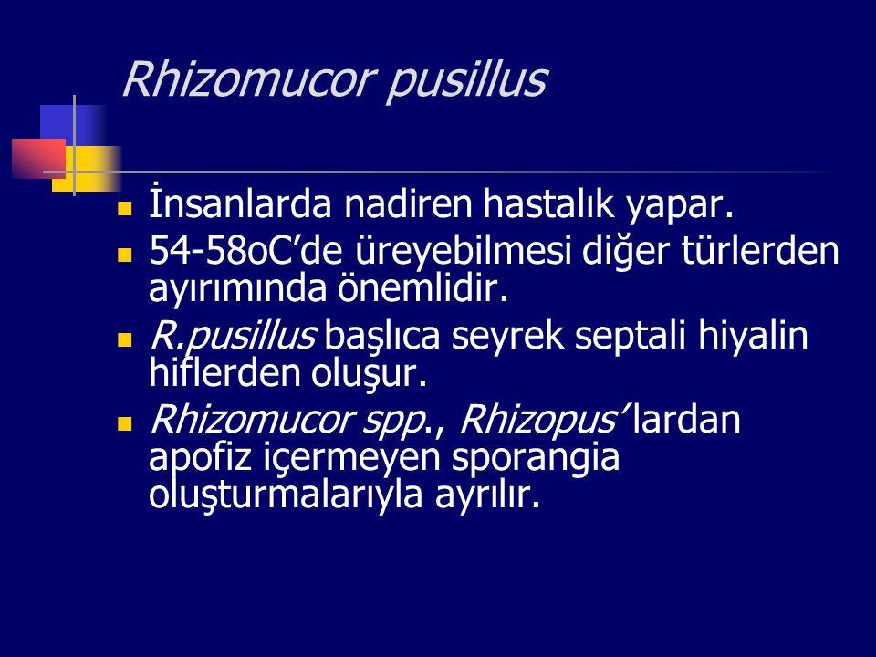 Rhizomucor pusillus İnsanlarda nadiren hastalık yapar. 54-58oC'de üreyebilmesi diğer türlerden ayırımında önemlidir. R.pusillus başlıca seyrek septali