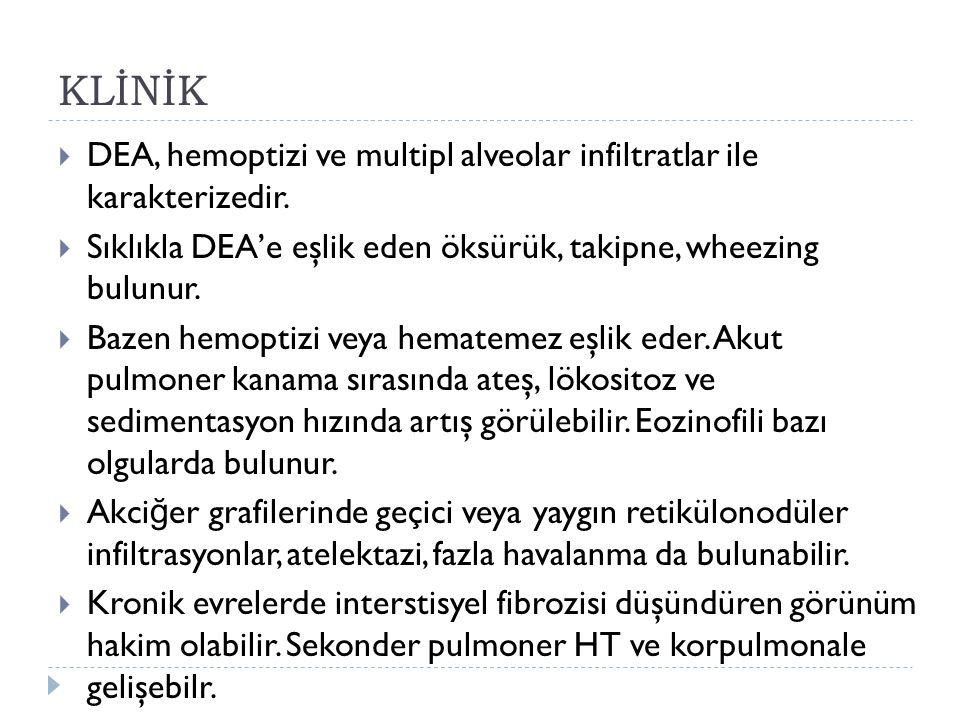 KLİNİK  DEA, hemoptizi ve multipl alveolar infiltratlar ile karakterizedir.  Sıklıkla DEA'e eşlik eden öksürük, takipne, wheezing bulunur.  Bazen h